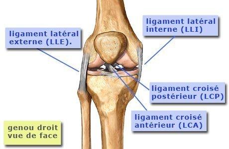 Ruptura del ligamento cruzado de la segunda rodilla